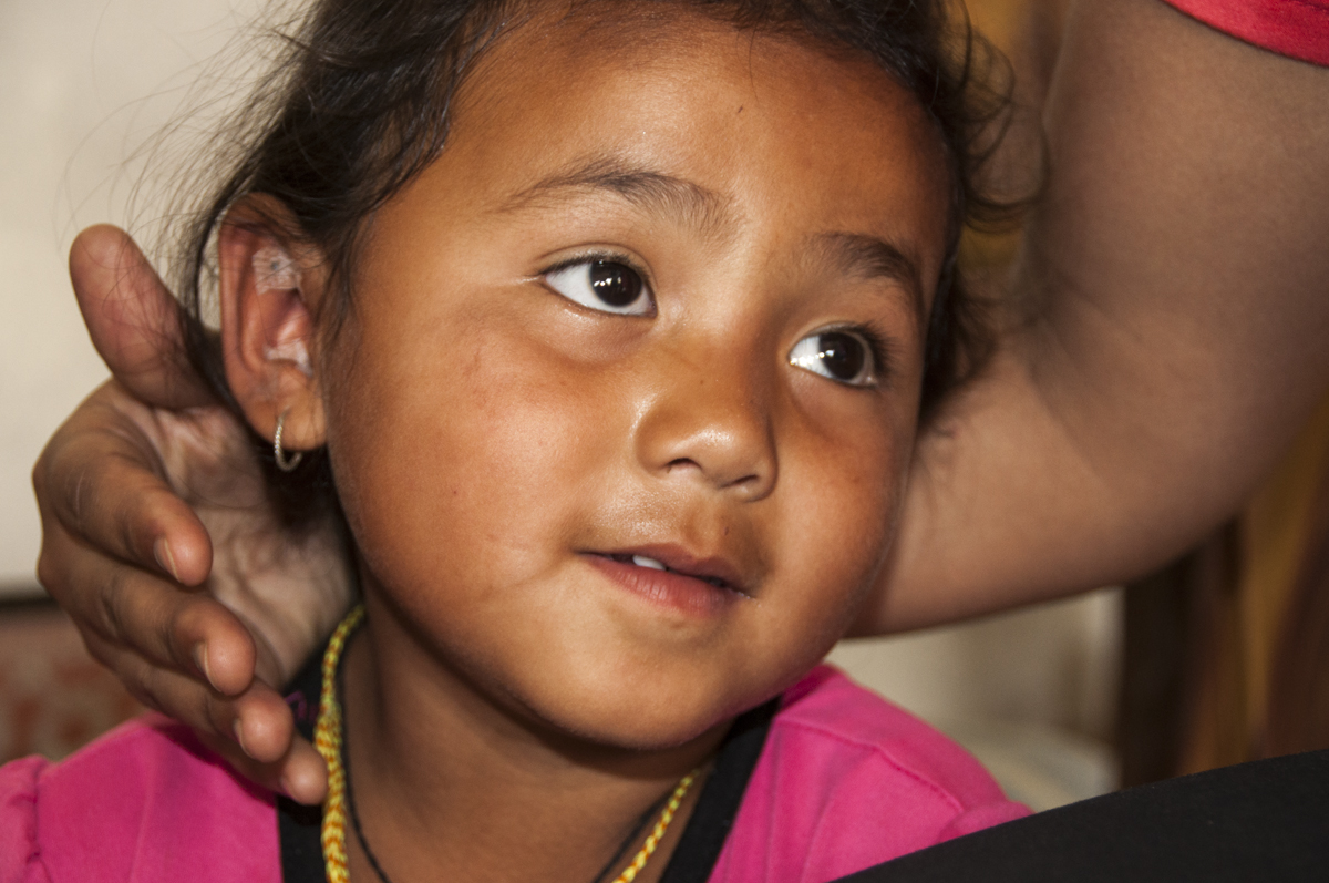 Child with ear seeds at Ramechhap Manthali Clinic