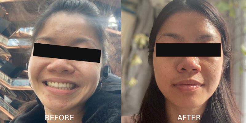 Acne Before After Treatment
