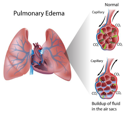 Dampness in Lungs
