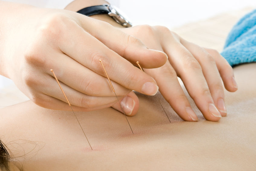 Acupuncture for Trauma